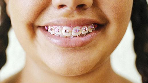 福州维乐口腔儿童牙齿矫正要多少钱