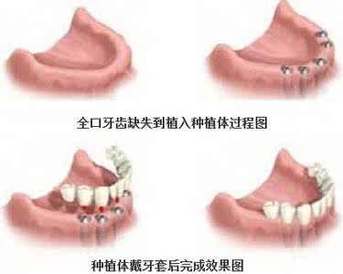 全口种植牙去哪家口腔医院好?_第1页_健康牙齿_都市